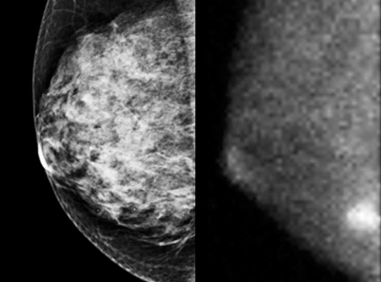 A tumor hidden behind dense tissue in a traditional mammogram (left) appears as a bright spot in a gamma-ray mammogram (right).