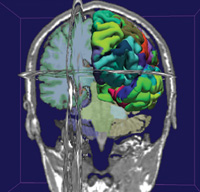3D Slicer visualization of a brain