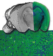 Mouse BIRN researchers are using multi-scale imaging methods to characterize mouse models of human neurological disorders